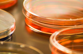2 rettegett betegség, amit biztosan kimutat a génteszt - Hol végzik el?