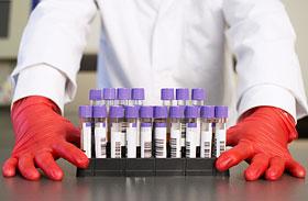 A laborlelet 8 legfontosabb adata - Így értelmezd!