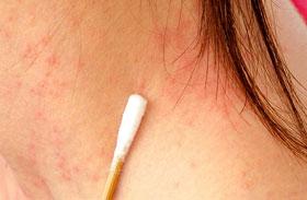 Bőrbetegség képeken