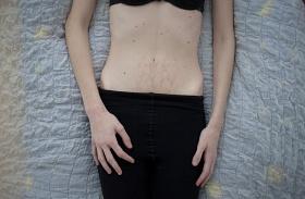 Bulimia anorexia fotósorozat