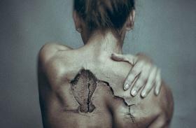 Fotók a fájdalomról
