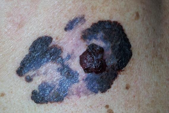 Bár a melanomáról sokan gondolják, hogy egyáltalán nem veszélyes, hiszen könnyen kimetszhető, ha a rákos sejtek elérik a bőr alsóbb rétegeit - a bőrdaganat ugyanis nemcsak horizontálisan, de vertikálisan is terjeszkedik -, nagyon gyorsan terjedhet el a szervezetben, távoli áttéteket adva, ezért nagyon fontos és életmentő is lehet a korai felismerés.