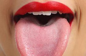 Lepedékes nyelv