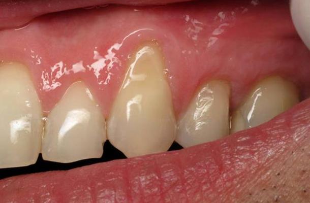 Így néz ki a visszahúzódott fogíny