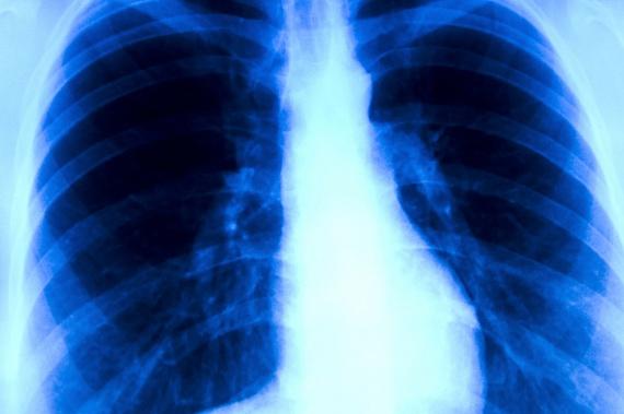 A petrezselyemnek a kutatások szerint immunerősítő, illetve rákellenes hatása is van, ráadásul nemcsak a megelőzésben játszhat fontos szerepet, de a rákos sejtek elpusztításában is. A tanulmányok szerint főként a tüdőrákos megbetegedések ellen lehet hatásos, de más rosszindulatú daganatok esetén is segíthet. Bár tény, hogy semmiféle kezelést nem lehet erre alapozni, kiegészítésként nem árthat, ha rendszeresen fogyasztod.