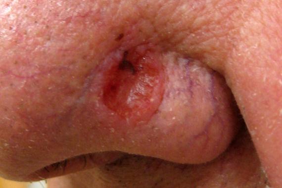 A melanomán kívül más típusai is léteznek a bőrráknak, az egyik leggyakoribb például a képen is látható bazálsejtes karcinóma, melynek felismerését megnehezíti, hogy könnyen összetéveszthető az egyszerű sebekkel. Fogj azonban rögtön gyanút, ha a seb nehezen vagy nem gyógyul, illetve mindez kitágult erekkel társul. Kattints ide, és a bőrrák további típusaira is megnézhetsz néhány példát.
