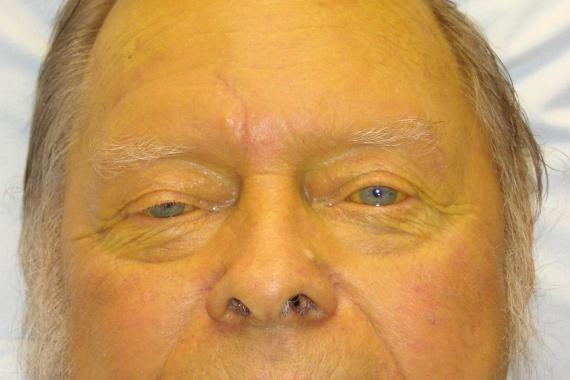 A sárgaság - mint jellegzetes bőrtünet - számos más rendellenesség esetén is jelentkezhet, társulhat azonban a máj rosszindulatú daganatához is. A képen extrémebb mértékű sárgaság látható, de az enyhébb változásra is érdemes odafigyelni, majd azonnal orvoshoz fordulni.