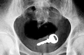 Vicces röntgenfelvételek