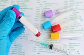 Zikafertőzés elleni kutatás