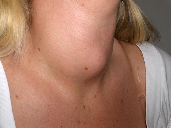 A nyakban található, pillangó alakú szerv, a pajzsmirigy nagyban felelős a hormonháztartás rendjéért. Amennyiben ez a szerv megbetegszik, és nem képes elég hormont termelni, az az emésztés lassulásához vezet, így egyszersmind súlynövekedéshez is. Az ilyen betegségek gyógyszeres kezelést igényelnek, hogy visszafordítható legyen a hízás, ezért érdemes orvos tanácsát kérni, ha erre problémára gyanakszol.