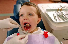 Gyerek fogszuvasodás fogmosás