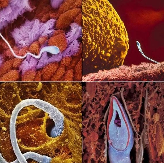 A bal felső képen egy, a petevezetékbe került hímivarsejtet láthatsz. Jobbra fent, a petesejt közvetlen szomszédságában látható a hímivarsejt, amely a bal alsó képen látható módon fúrja át magát a petesejt falán. Itt még akadnak versenytársai: közülük a leggyorsabb és legügyesebb győz. A jobb alsó felvételen a már bejutott hímivarsejtet láthatod.
