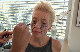 Nóci arcplasztika