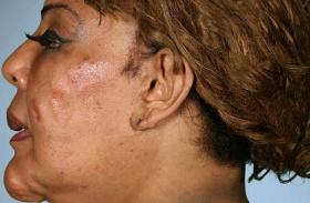 Botoxolás cementtel
