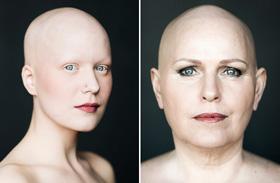 Lenyűgöző fotók kopasz nőkről