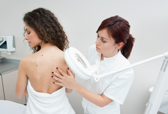 Nem csak az anyajegyek miatt érdemes felkeresni a bőrgyógyászt! A nyáron felbukkanó szemölcsök, dudorok, foltok is intő jelei lehetnek komolyabb bőrbetegségeknek - jó, ha minél előbb megmutatod őket egy szakértőnek!