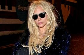 Lady Gaga plasztikáztatott