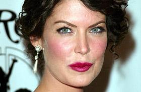 Lara Flynn Boyle plasztika puffadt arc