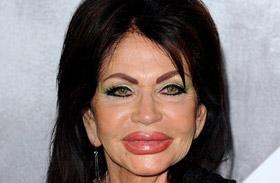 Sylvester Stallone anyja, Jackie plasztikája