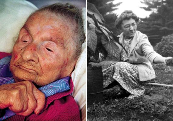 A francia-kanadai származású Marie-Louise Meilleur 1880. augusztus 29-én született Quebecben és 1998. április 16-án hunyt el 117 évesen. A történelem negyedik, regisztrált legidősebb embere, akinek két férjétől összesen tíz gyermeke született. Élete során 85 unokája, 80 dédunokája, 57 ükunokája és négy szépunokája született.