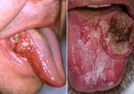 A dohányzás és a túlzott alkoholfogyasztás okozta szájrák évente körülbelül kétezer halálos áldozatot szed Magyarországon. A fenti képen látható betegség kialakulását megelőzi az úgynevezett leukoplákia, amely egy visszafordítható állapot. Erről korábbi cikkünkben láthatsz fotókat.