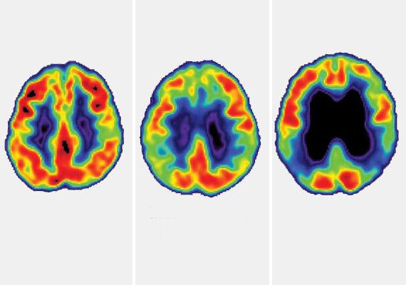 A bal oldali CT-felvétel egy egészséges agyról készült, a középsőn már megfigyelhetőek az enyhe kognitív romlás tünetei, a jobb oldalin pedig egyértelműen látszanak az Alzheimer-kór okozta sorvadás jelei.