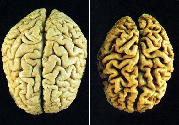 A fenti felvételeken egyértelműen látszik a különbség a bal oldali egészséges és a jobb oldali alzheimeres agy között: a betegség során az agytekervények - gyrusok - elkeskenyednek, a közöttük található barázdák - sulcusok - kiszélesednek.