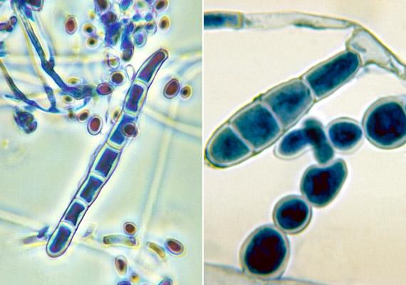 A képen látható Trichophyton és Epidermophyton nemzetség egyaránt a Dermatophytonok közé tartozik. Ezek a gombák egy speciális enzimnek, a keratináznak köszönhetően képesek átjutni a köröm, a haj és a szőrtüszők szarurétegén, hogy ezeken a helyeken élősködjenek.