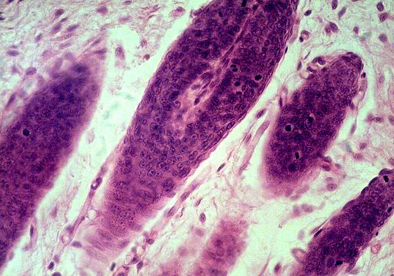 A mikroszkopikus felvételen hajhagymákat láthatsz. Tudd meg, milyen hajhagymákat érintő negatív hatás vezethet hajhulláshoz!
