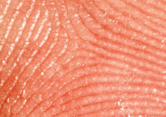 Nem nehéz felismerni az első fotót: egy ujjlenyomatról készült. A következő képek azonban mélyebbre ásnak a bőr rétegeiben.