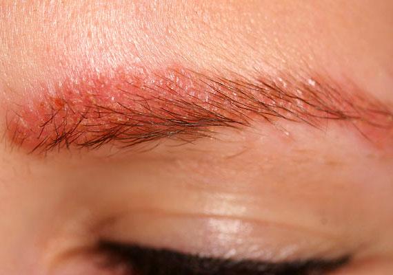 A kontakt dermatitist olyan kémiai anyagok váltják ki, melyekkel mindennapjaid során gyakran érintkezel. A fotón látható allergiás reakciót például a hajfesték okozta. A kontakt dermatitisről bővebben olvashatsz korábbi cikkünkben.