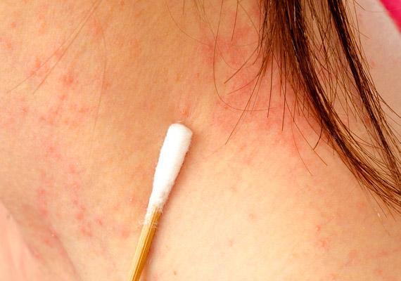 vörös pikkelyes foltok az arcon viszketés kezelés