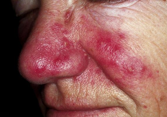 A rosaceának három stádiuma van: az első szakaszban csak pirosság mutatkozik a bőrön, a második stádiumban már apró, pattanásokhoz hasonló göbök jelennek meg az orcákon, az orron, a harmadik szakaszban pedig az arcon már nagyobb csomók figyelhetők meg. Tudj meg többet a betegségről!