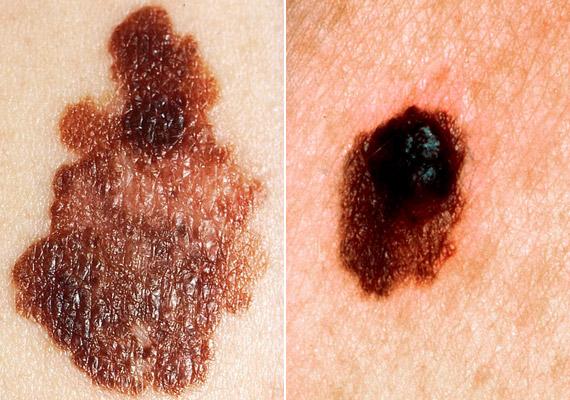 A melanoma tulajdonképpen nem a bőr saját sejtjeinek daganata, hanem a bőrben lévő idegi eredetű, pigmenttermelő sejtekből - más néven melanocitákból - indul ki. A káros UV-sugárzás eredményeképpen létrejöhet már meglévő festékes anyajegyekből, illetve pigmentált elváltozásokból is. Ha a fenti képen láthatóhoz hasonlót veszel észre magadon, azonnal fordulj orvoshoz. De akkor is érdemes, ellátogatnod a bőrgyógyászhoz, ha úgynevezett atípusos anyajegyeid vannak.