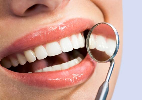Nemcsak a bőr, de a nyálkahártya sérüléseinek gyógyításában is segítséget jelenthet a vitamin, ha például ínyvérzés keseríti meg mindennapjaidat, érdemes többet szedned belőle. A C-vitamin továbbá a fogakat, a csontokat és az ízületeket is erősíti.