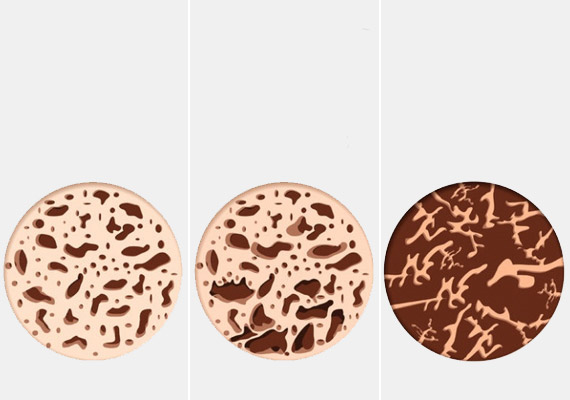 A fenti képeken - balról jobbra haladva - a csontállomány folyamatos csökkenését figyelheted meg. Bal oldalon normál csontszerkezetet látsz, a középső ábra már csontritkulást jelez, a jobb oldali pedig a betegség súlyos változatát mutatja be.