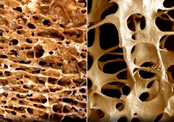 A bal oldali felvételen egy normál csontállományt látsz, míg a jobb oldalon lévő, nagy lyukakból álló csontszerkezet egyértelműen jelzi a csontritkulást. Mivel a nők csontállománya eleve könnyebb, vékonyabb, a menopauza után a csökkenő hormonszint 10 évig viszonylag nagymértékű csontállomány-leépülést eredményezhet, ha nem kezded meg időben a kalciumpótlást.