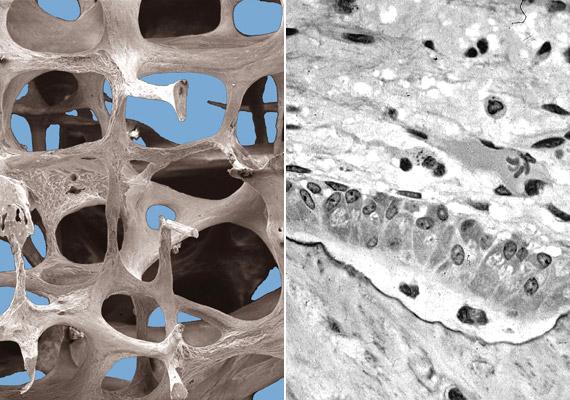 A dohányzás növeli a csontritkulás kockázatát, mivel a dohányfüstben lévő egyes toxinok aktiválják a csontok leépüléséért felelős oszteoblaszt sejteket. Balra a csontritkulás eredményeképpen létrejövő törékeny csontállományt látod, a jobb oldali képen pedig az aktív csontképző sejteket.