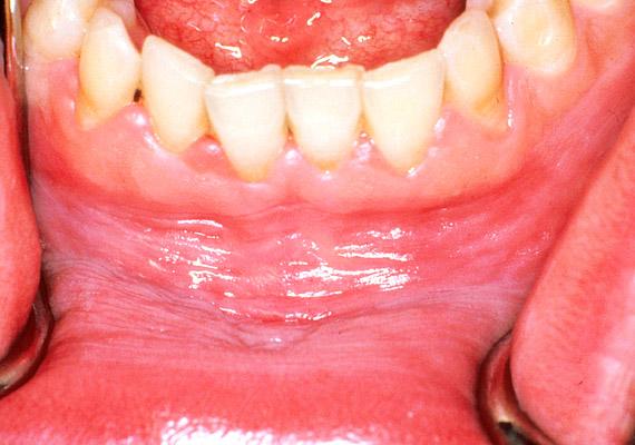 További a szájat érintő betegséget is okozhat a dohányzás. A fent látható fotón az alsó ajak barázdáiban leukoplákia figyelhető meg, mely egy rákmegelőző - úgynevezett prekancerózus - állapot. Tudj meg többet róla!