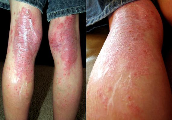 Az ekcéma nevű bőrgyulladás gyakran allergiás hajlamhoz társul. Jellemző tünete, hogy a bőrön viszkető, száraz, pikkelyes foltok jelennek meg, idővel pedig apró, folyadékkal teli hólyagok képződnek - ezek kifakadhatnak, és a bőr durva, nedves tapintású lesz. Tudj meg többet a betegségről!