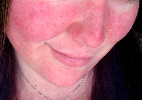 A rosaceának jellemzően három stádiuma van: az első - képen is látható - szakaszban csak pirosság mutatkozik, a második stádiumban már apró, pattanásokhoz hasonló göbök jelennek meg az orcákon, az orron, a harmadik szakaszban pedig az arcon már nagyobb csomók figyelhetők meg. Tudj meg többet a betegség okairól korábbi cikkünkből!