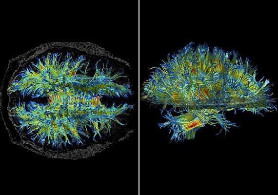 Elsőre egy furcsa, színes sündisznónak is tűnhet. A fenti képek úgynevezett diffúziós tenziós képalkotási eljárással készültek, és az agy fehérállományát mutatják. A fehérállomány a neuronok velős hüvelyű axonjaiból - idegrostokból - áll.