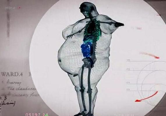 Az elhízásról készült fenti röntgenkép megmutatja, hogy mennyivel több súlyt kell cipelnie egy átlagos csontváznak jelentős mennyiségű plusz kilók esetén. A felvételek a 450 kilós Keith Martinról készültek.
