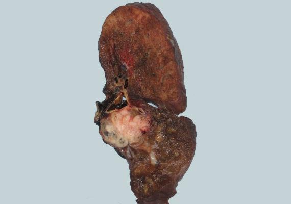 A képen látható tüdőszövet normál esetben rózsaszínű, ám a több évtizednyi dohányzás következtében tüdőrák alakult ki. Kattints korábbi cikkünkre, és hasonlítsd össze az egészséges tüdővel!