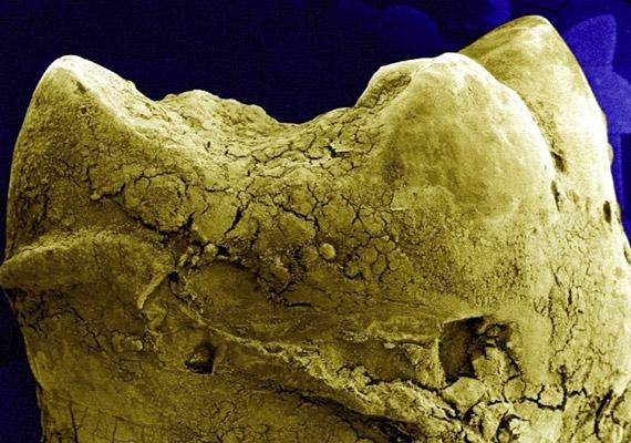 Az emberi fog négy rétegből - zománcból, dentinből, fogbélből és cementrétegből - áll. Mikroszkóp alatt azonban sokszor jól látható, hogyan váltja fel a zománcréteget a plakk és a fogszuvasodás. Ismerd meg a legveszélyesebb zománcgyilkosokat!