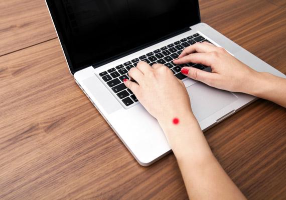 A 3M-5 nevű pont a csukló kézfej felőli oldalán helyezkedik el - kéthüvelyknyire a kéztőízülettől a könyök irányába. Ennek a pontnak a finom masszírozásával enyhíthető a tompán lüktető fogfájás.