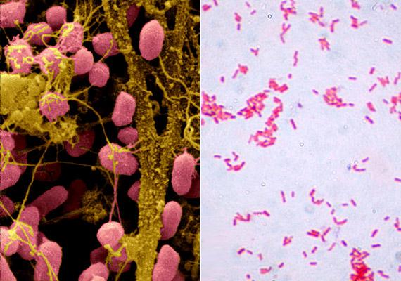 A Serratia marcescens névre hallgató baktérium jelenlétére a zuhanyzóban, WC-csészében vagy a mosdókagylóban kialakult nyálkás, rózsaszínes filmréteg hívja fel a figyelmet.