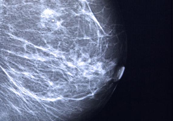 Mellrák - ha az önvizsgálat vagy egy röntgenfelvétel során csomókat találsz a melledben, illetve foltokat látsz a felvételen, még nem biztos, hogy rákról van szó. De mindenképpen jelezni kell az orvosnak, hogy megtörténhessen a teljes kivizsgálás arra vonatkozóan, milyen típusú elváltozás van a melledben. A csomók gyakran szöveti elváltozások vagy ciszták, de ezeket is érdemes megnézetni, kezeltetni.