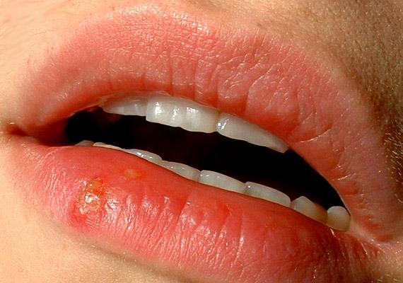A herpesz az ajkakon megjelenő, vírusos eredetű hólyagos megbetegedés. Ezt a betegséget az I-es típusú herpesz szimplex vírus okozza. Először bizsergéssel hívja fel magára a figyelmet, majd égő fájdalommal kísért hólyagok alakulnak ki, amelyek kifakadnak. Tudj meg többet a fertőzésről és természetes gyógymódjairól!