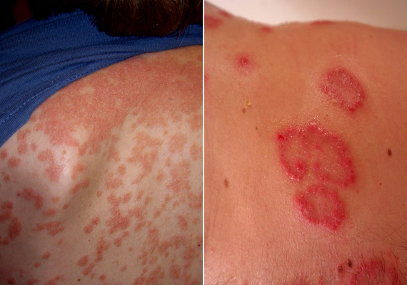 A pikkelysömör - psoriasis - a bőr nehezen kezelhető, krónikus gyulladásos megbetegedése. A betegség során az elhalt bőrsejtek helyére kerülő újak túl gyorsan termelődnek, és hirtelen kerülnek a felszínre. Így ezüstös pikkelyekkel vagy vastag, fehér plakkal fedett piros foltok keletkeznek. Tudj meg többet róla!